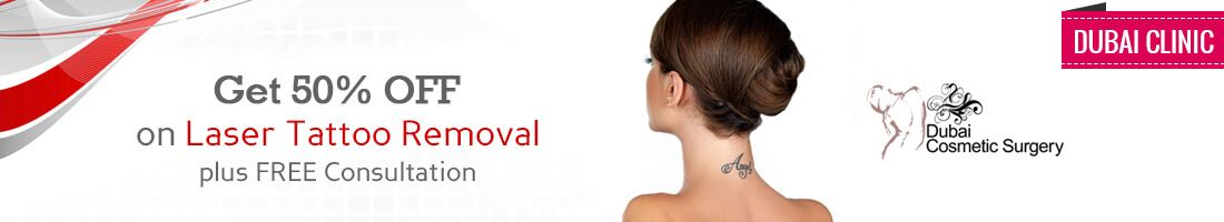 50% OFF on Laser Tattoo Removal | Dubai Clinic
