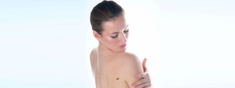 Skin tag removal in Dubai