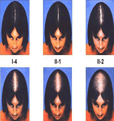 hair loss before after