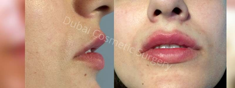 fillers before after
