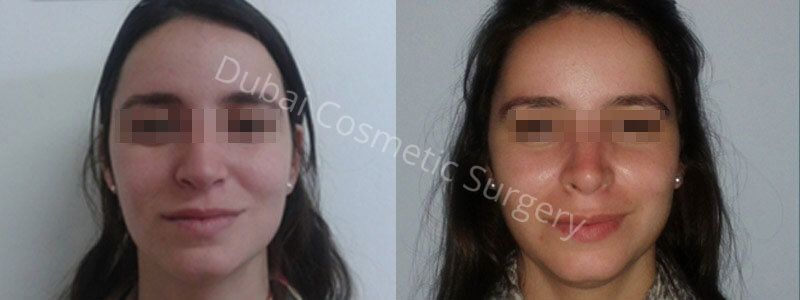 rhinoplasty before after images