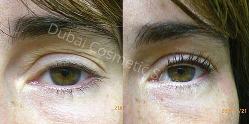 Eyelashes hair transplant in Dubai