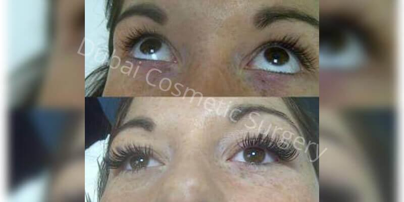 Eyelash Hair Transplant In Dubai Abu Dhabi Male Female Dubai
