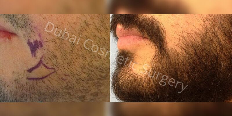 male Hair transplant before & After