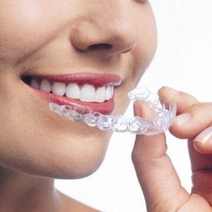 Invisalign braces in Dubai