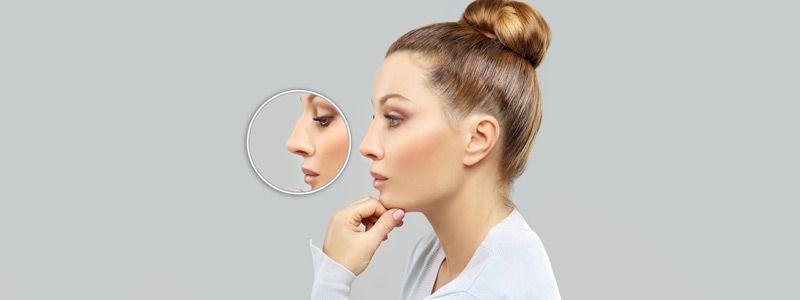 nose job in dubai