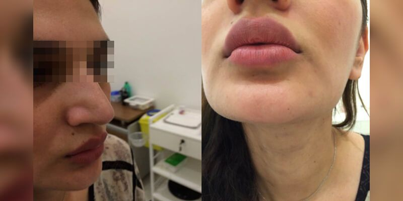 Lip augmentation in Dubai
