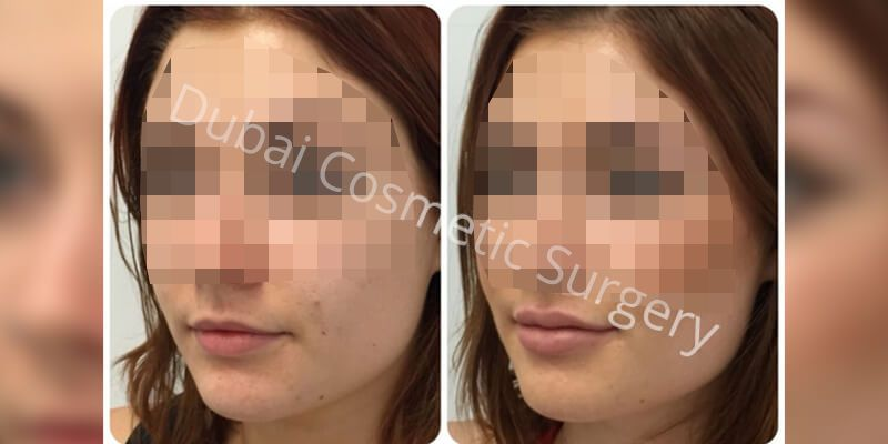 Chin Implant Before & After1
