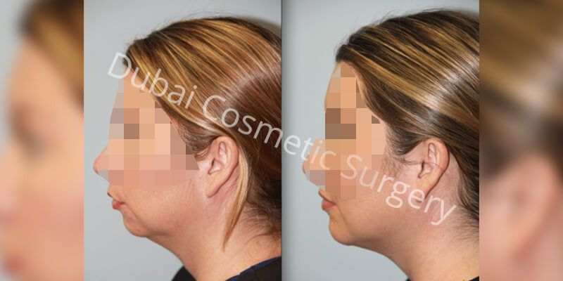 Chin Implant Before & After 2