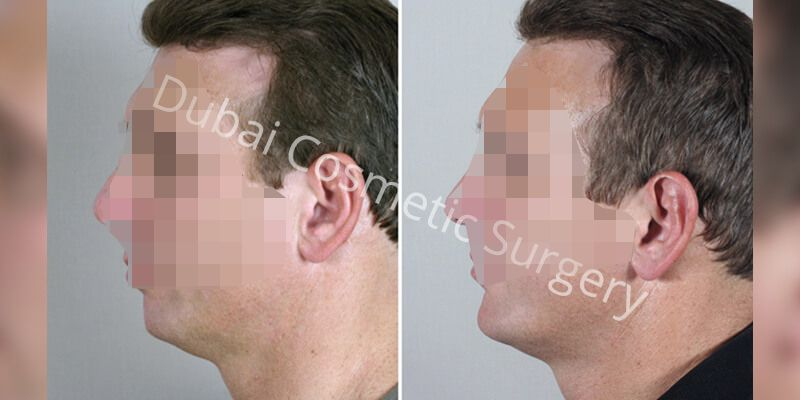 Chin Implant Before & After 3