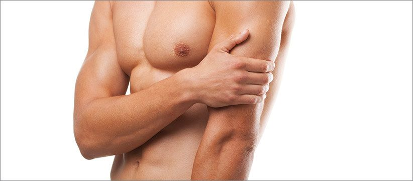Gynecomastia male breast