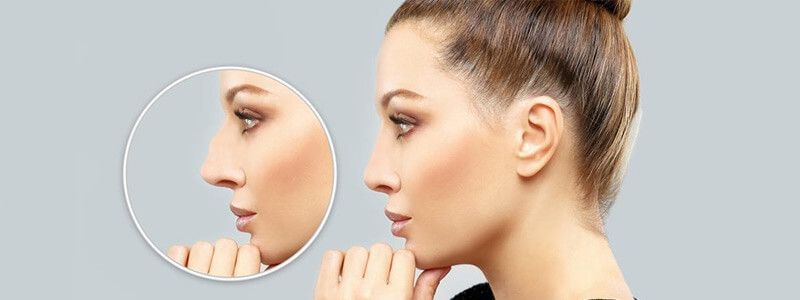 How Long Does Rhinoplasty Surgery Take