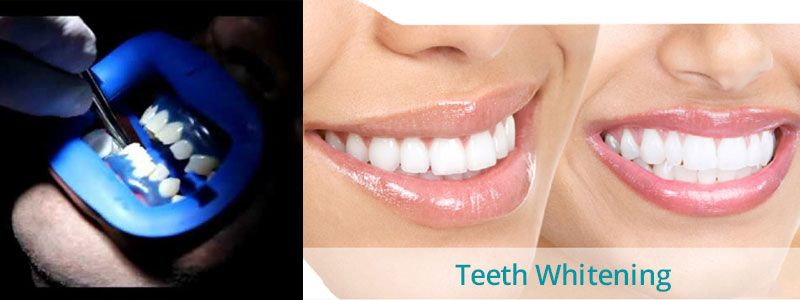 Laser Teeth Whitening Treatment