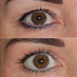 Plexr Plasma Eye Lift