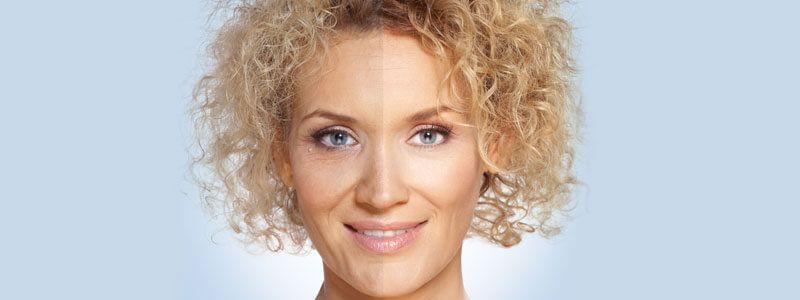 Laser Treatment For Wrinkles & Fine Lines