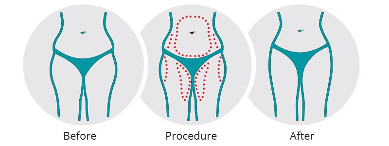 Liposuction How It Works, Types, Safety, Side Effect & Benefits