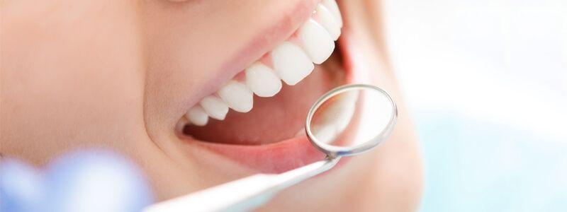 dental vaneers