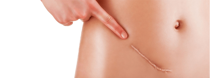 5 Best Scar Removal Treatments