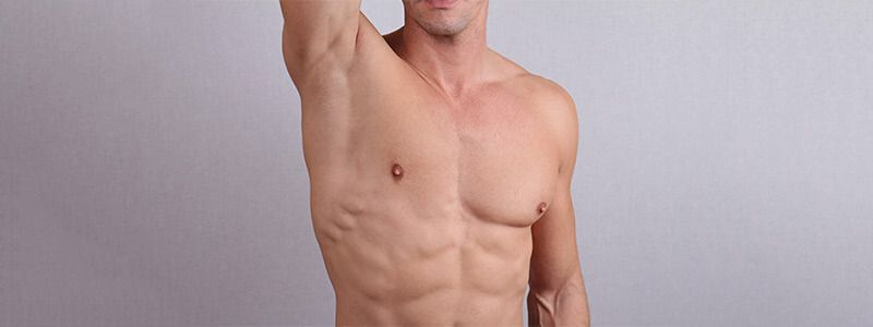 laser hair removal men
