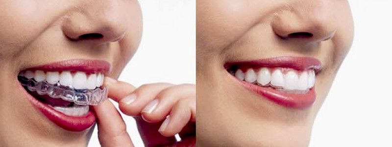 How Invisalign & Clear Braces Work