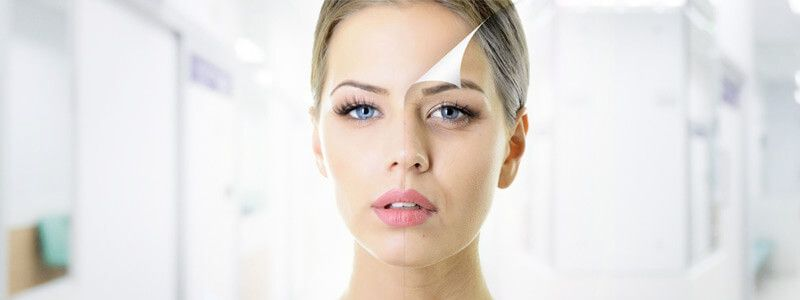 How Long Do Chemical Peel For Skin Results Last