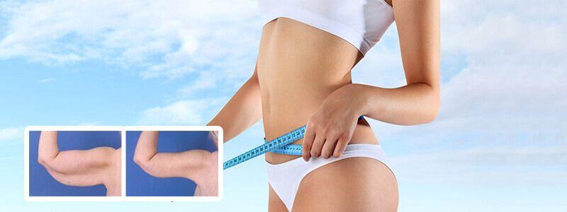 Body Contouring Procedures