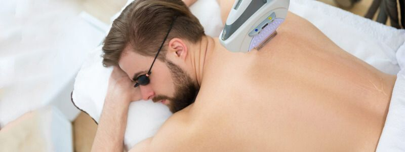 Who Can Get Laser Hair Removal-img