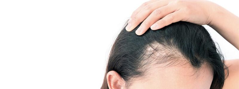 Female Hair Transplant Recovery
