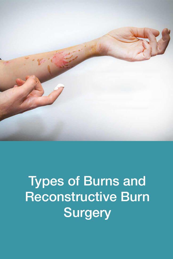 Types Of Burns And Reconstructive Burn Surgery Dubai