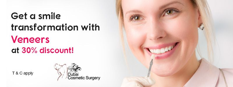 Get a smile transformation with Veneers at 30% discount!
