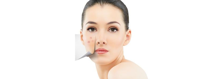 Acne Treatment Cost in Dubai