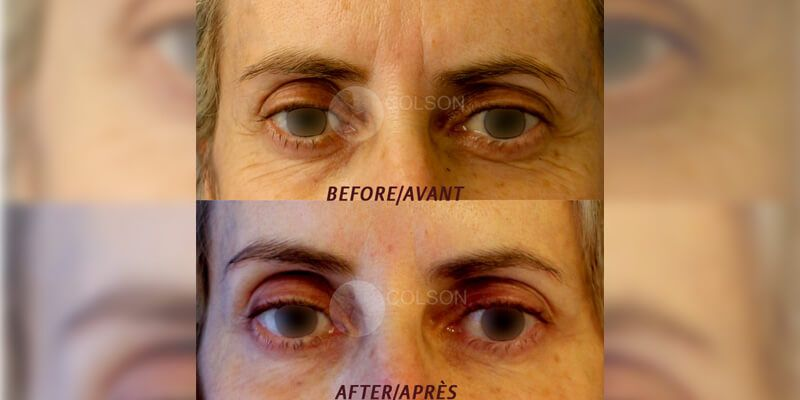 Botox treatment in Dubai