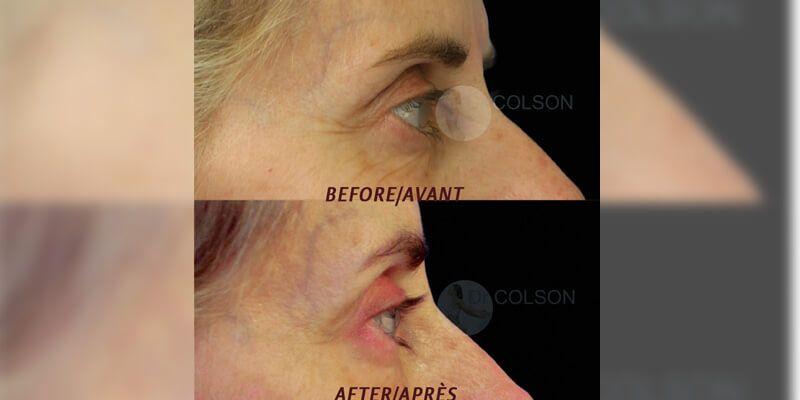Botox Treatmnet