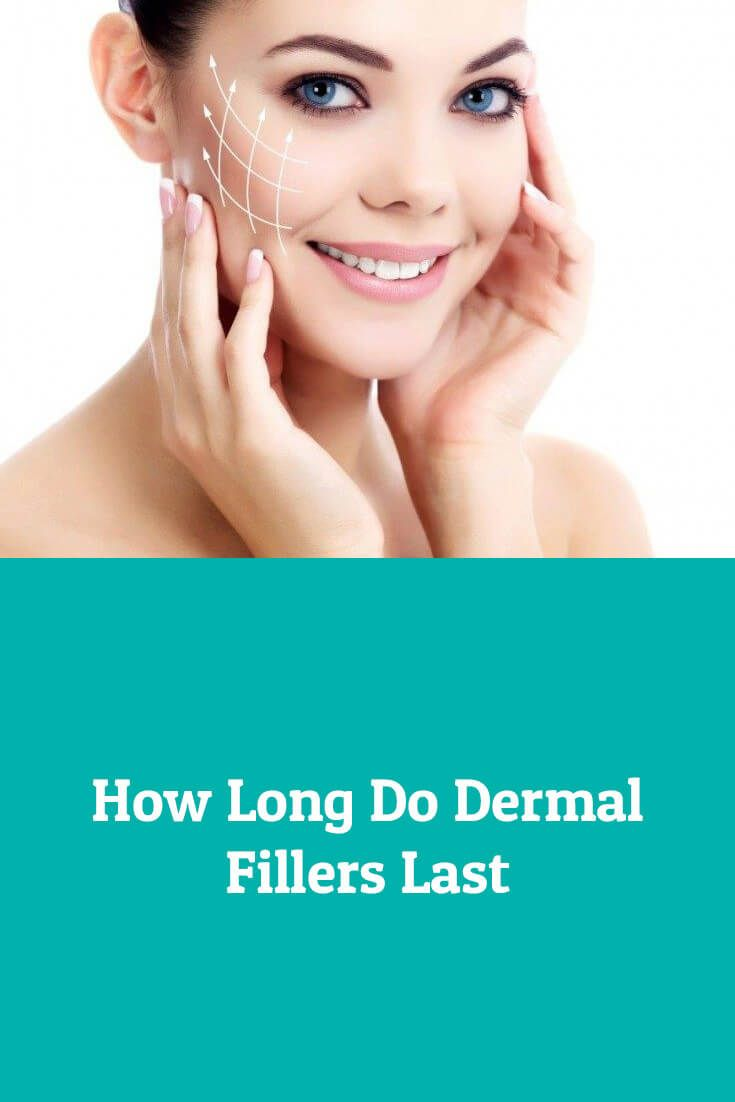 How Long Do Dermal Fillers Last Dubai Cosmetic Surgery 174