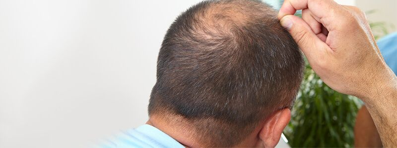 Options for Males with Poor Donor Hair Density