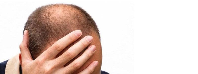 Success Rate of Different Hair Transplant Types