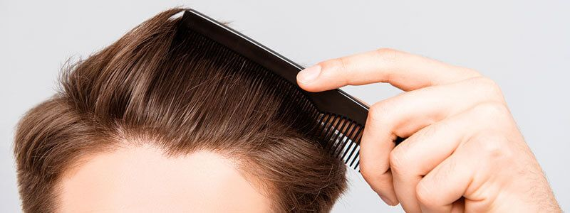 Acell Therapy for Hair Loss Success Rate and Side Effects