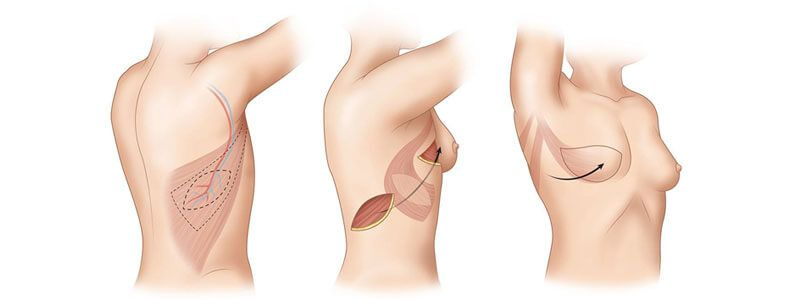 DIEP Flap vs Implants
