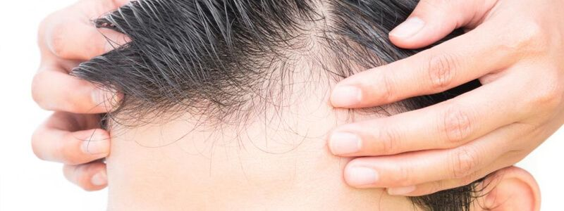 Male Pattern Baldness Causes and Treatments