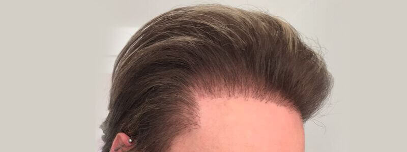 Best Alternatives to Hair Transplant in 2019