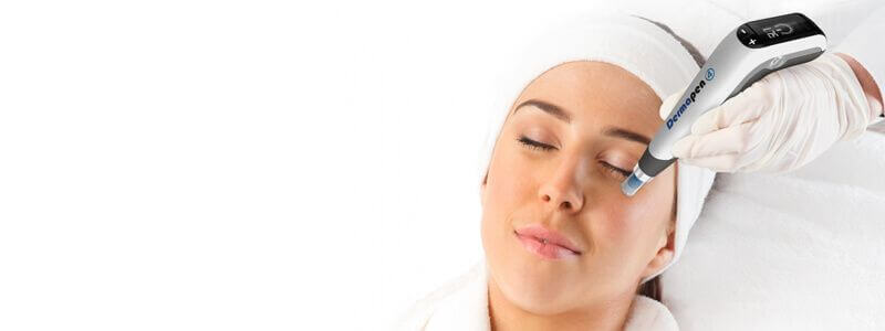 Acne Scars treatment in Dubai