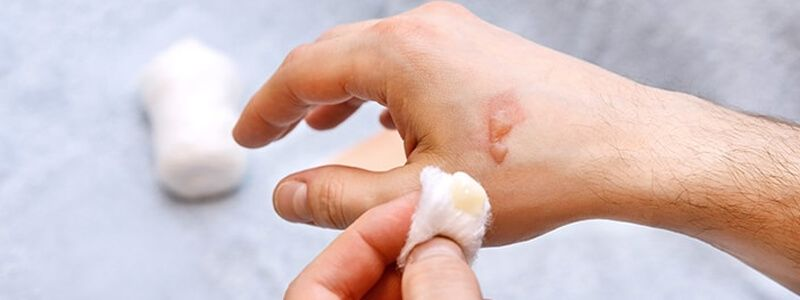 How to Treat a Burn Blister