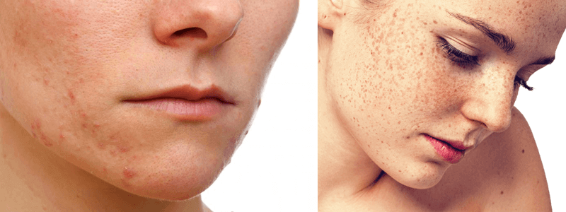 freckles treatment in Dubai