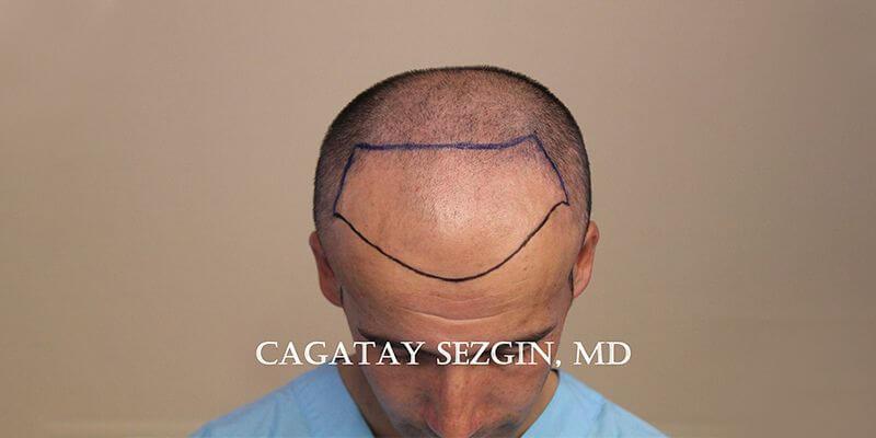 Dr. Cagatay Sezgin Hair Transplant